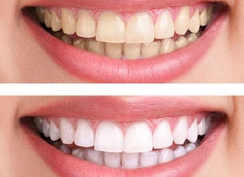 Con người có bao nhiêu cái răng