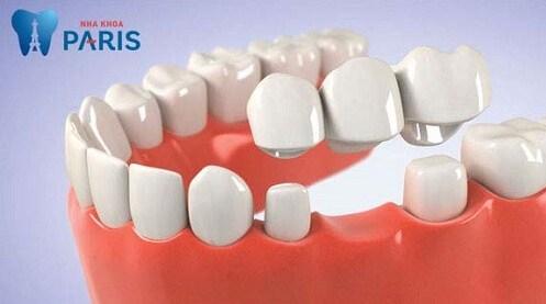 Làm cầu răng sứ khắc phục mất một, vài răng