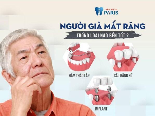 Cấy ghép implant bền tốt nhất